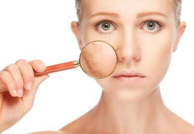 What are Skin Blemishes or Spots?
